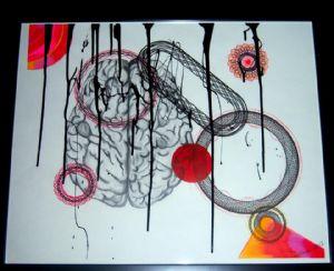 Brain Hemmorhage